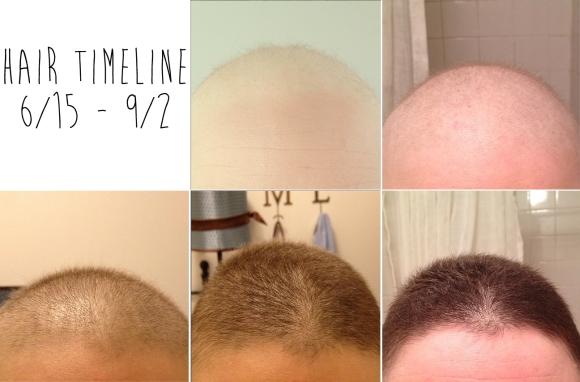 hairtimeline